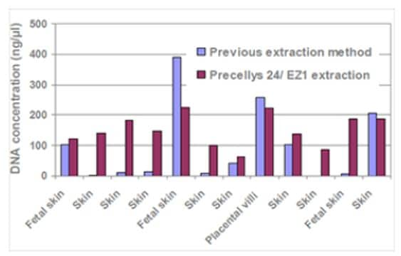 Concentration comparison of previous extraction method to Precellys / EZ extraction